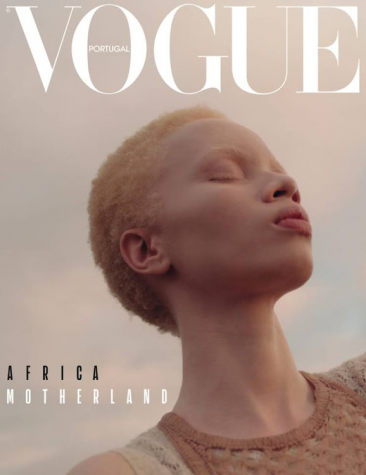 Thando Hopa, a South African model, lawyer, and activist. became the first woman with Albinism to be on the cover of Vogue in 2019.